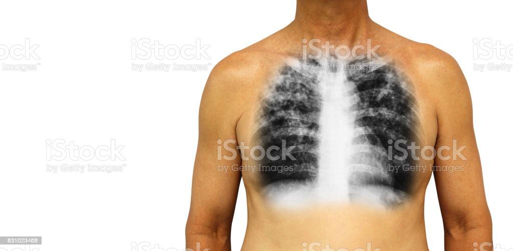 Lungentuberkulose Menschliche Brust Mit Xray Interstitielle ...