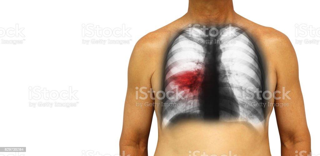 Tuberculosis Pulmonar Humano Tórax Con Infiltrado Irregular De Rayos ...