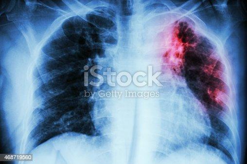istock Pulmonary Tuberculosis 468719560