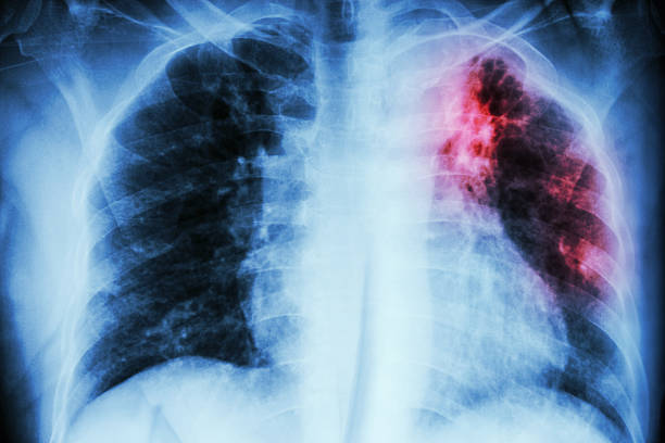 Pulmonary Tuberculosis Pulmonary Tuberculosis .  Chest X-ray : interstitial infiltration at left upper lung due to Mycobacterium Tuberculosis infection lung stock pictures, royalty-free photos & images