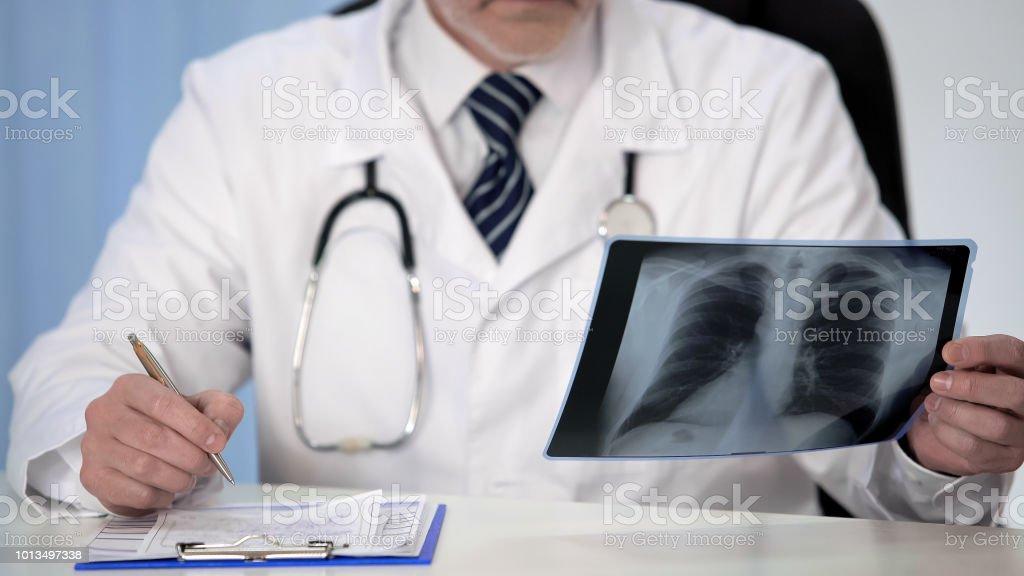 Lungenspezialisten Blick auf Lunge Röntgen verschreibenden Behandlung für Patienten, medizinische – Foto