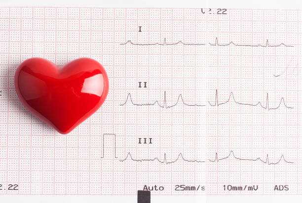 Pulse trace and red heart stock photo