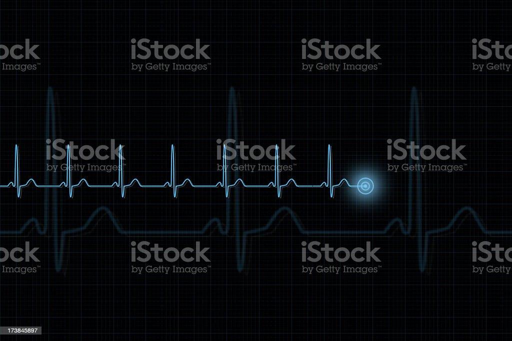 Pulse Trace stock photo
