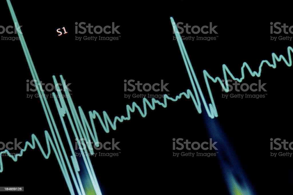 Pulse Trace royalty-free stock photo