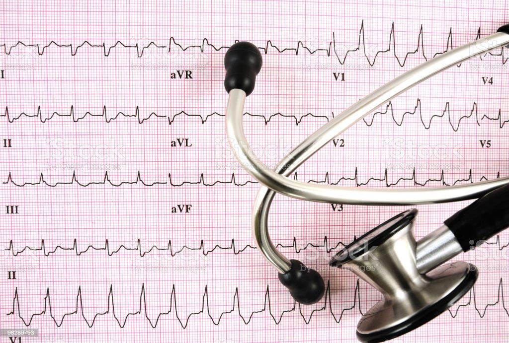 Elettrocardiogramma foto stock royalty-free