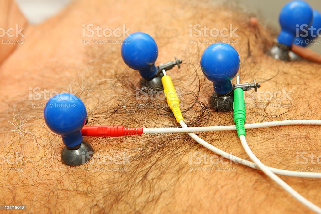 Pulse trace...ECG electrodes on a patiets chest stock photo
