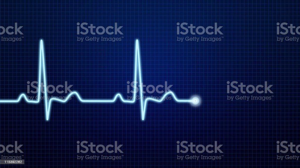 EKG Pulse Waveform royalty-free stock photo