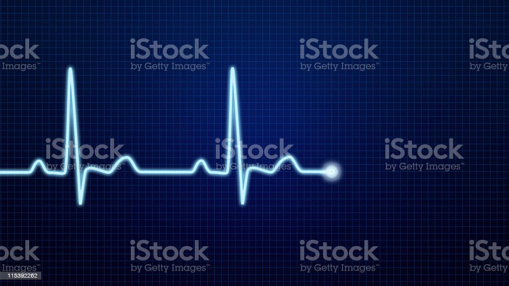 EKG Pulse Waveform stock photo