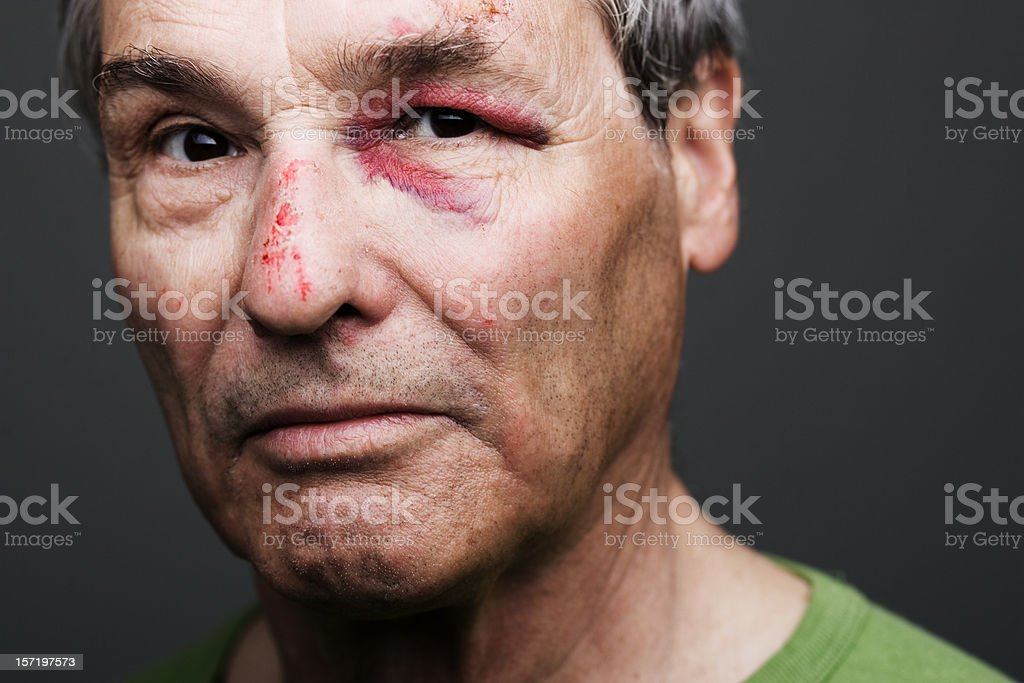 punched grandfather stock photo