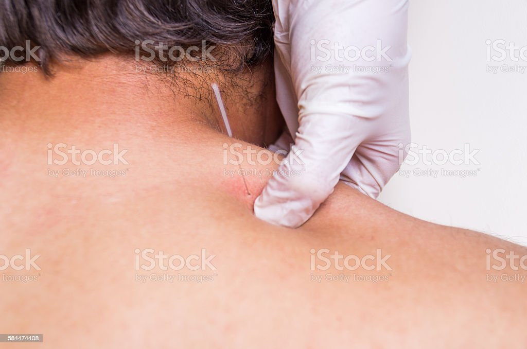 puncion seca dry needling acupunture fisio stock photo