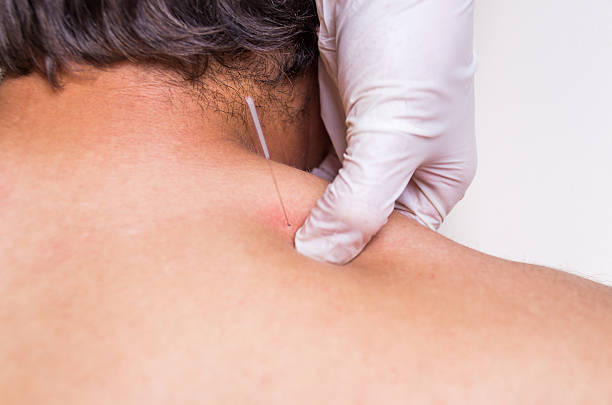 puncion seca dry needling acupunture fisio - dry stock photos and pictures