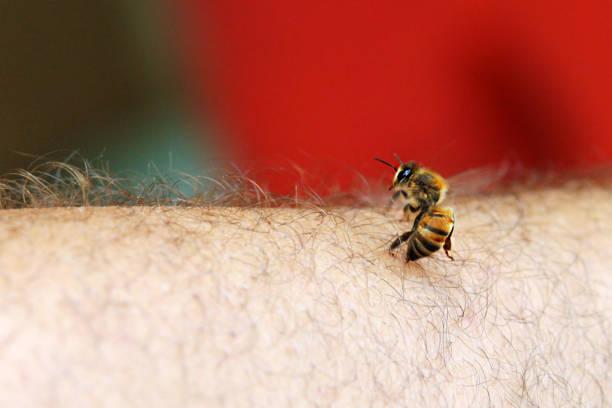 Puntura di ape Un'ape punge la pelle di un uomo stinging stock pictures, royalty-free photos & images