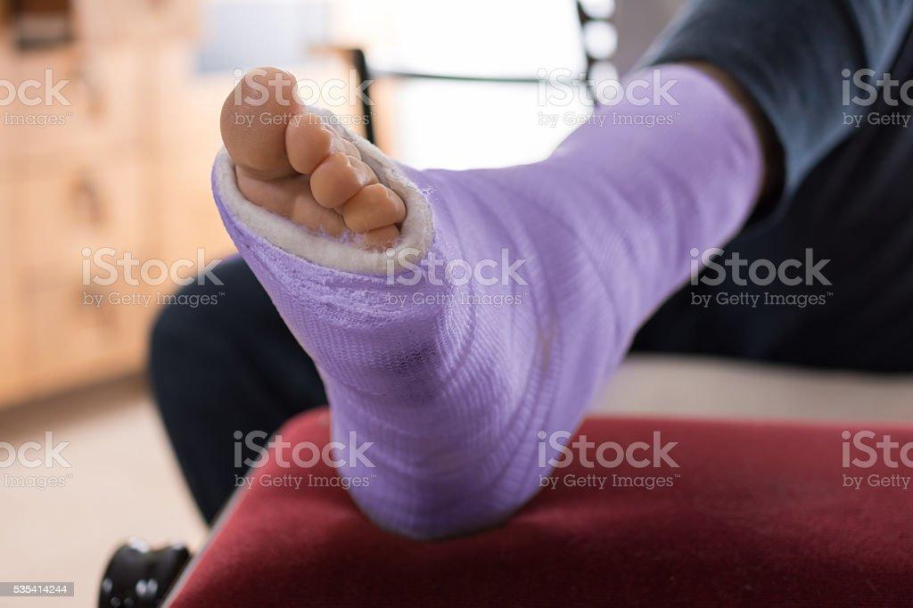 Purple blue Fiberglass / Plaster leg cast stock photo