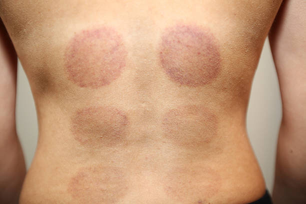 purple marks after cupping therapy - cupping therapy stock photos and pictures