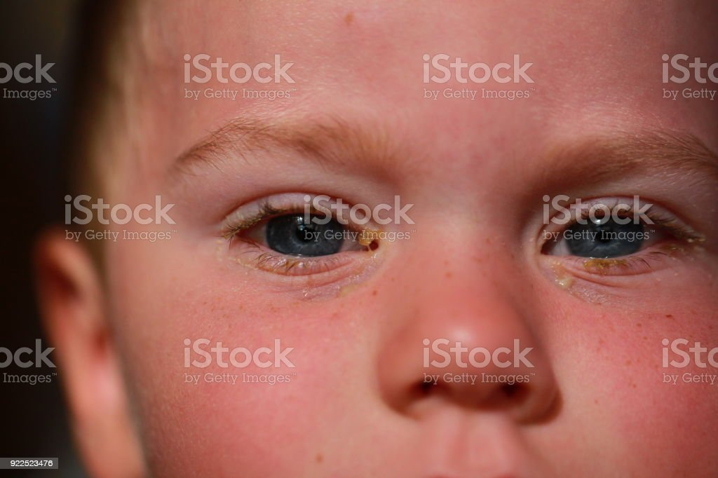 purulent conjunctivitis in children stock photo