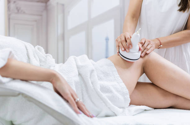 Radiofrequency lifting legs treatment stock photo