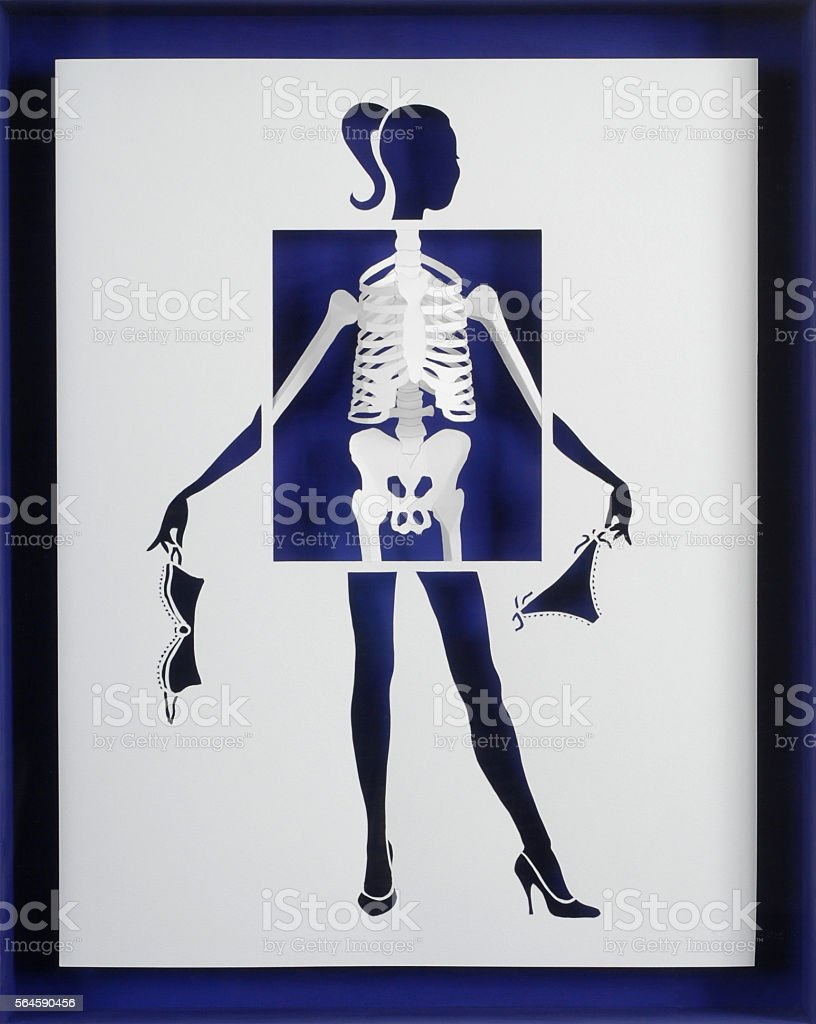 Radiograph of a pretty woman stock photo