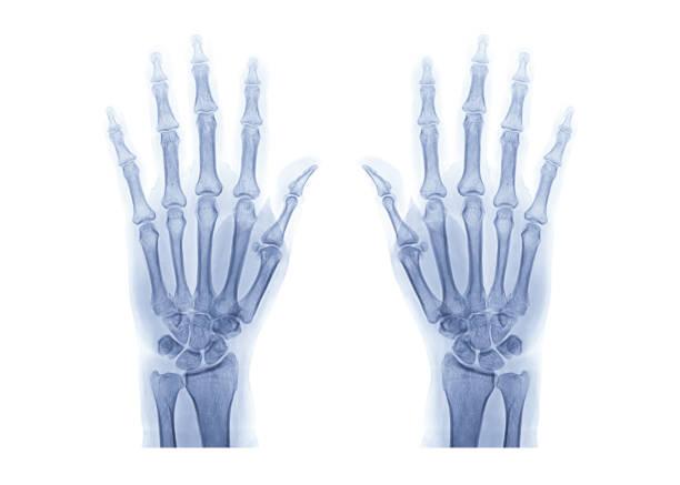 radiologischen oder Röntgenbild von beiden Hand isoliert auf weißem Hintergrund. – Foto