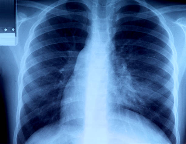 radiography of chest radiography of chest with pulmunar illness respiratory disease stock pictures, royalty-free photos & images