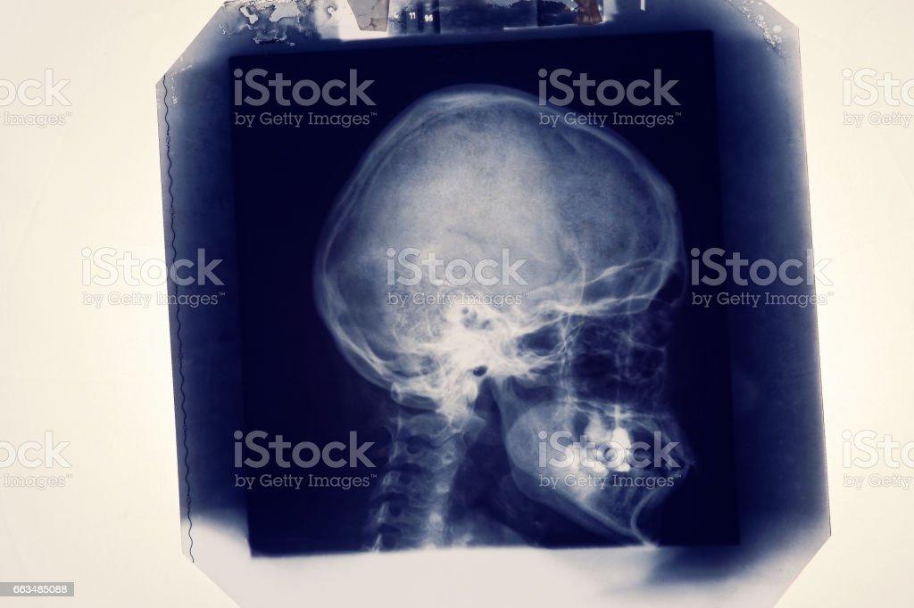 Radiolody image X-ray stock photo