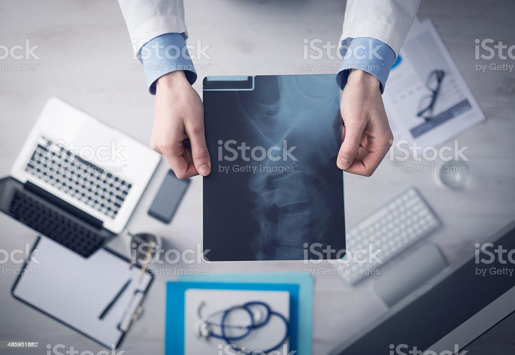 Radiologist checking an x-ray image stock photo
