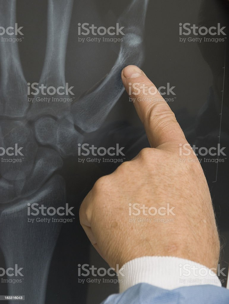 Radiologist Pointing at joint pain in the human hand royalty-free stock photo