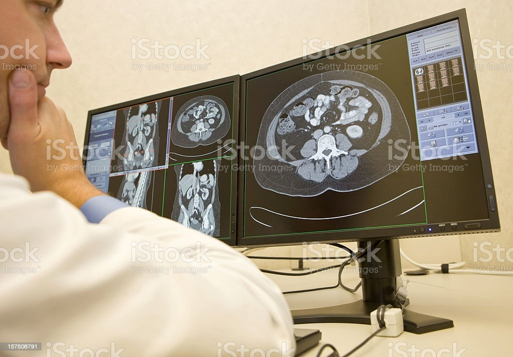 Radiologist Reviews CAT Scans on Monitors royalty-free stock photo