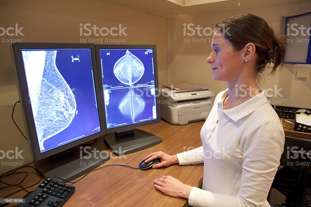 Radiology technician reviewing mammography results stock photo