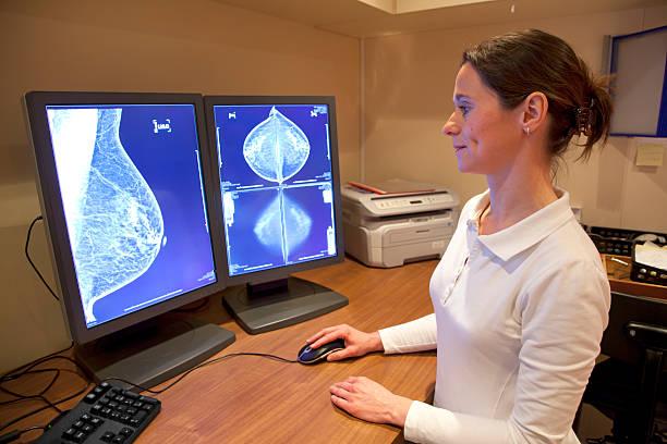 radiology techniker prüfung mammography ergebnisse - mammografie stock-fotos und bilder