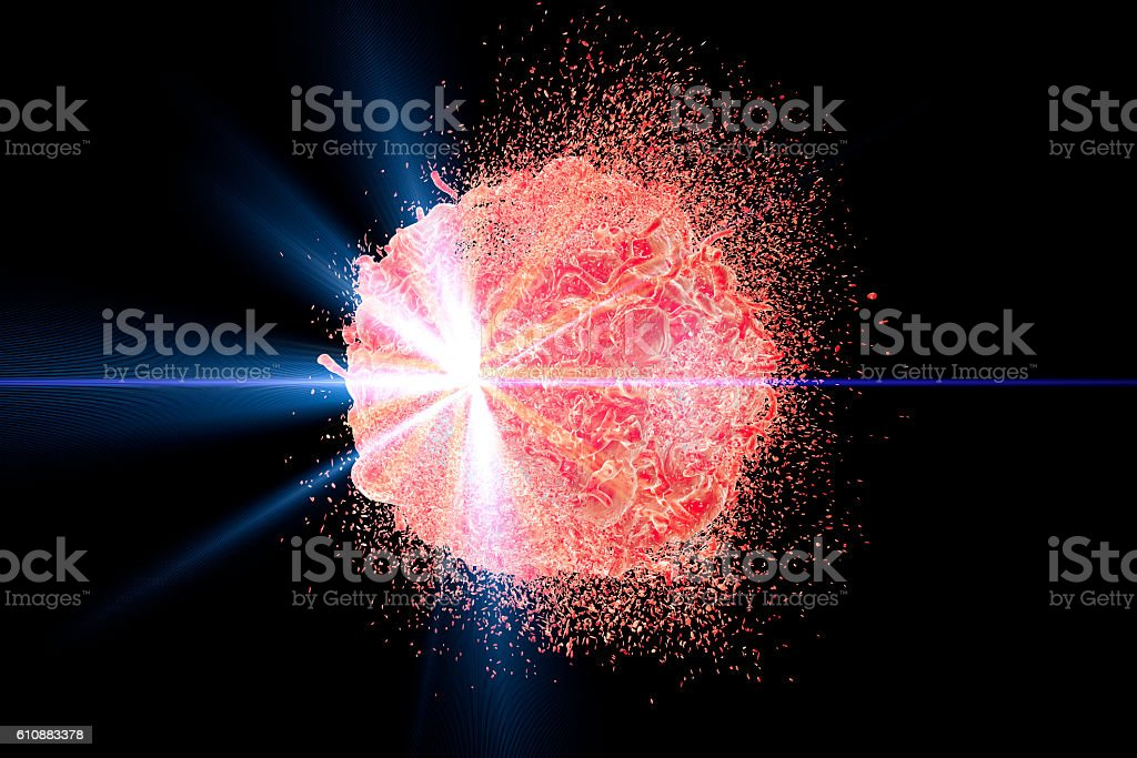 Radiotherapy of cancer concept stock photo
