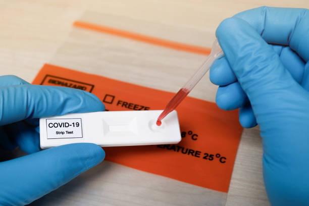 rapid covid-19 strip test - anticorpo foto e immagini stock