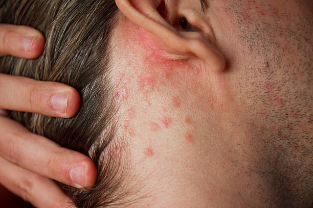 Rash Psoriasis skin disorder on neck psoriasis stock pictures, royalty-free photos & images