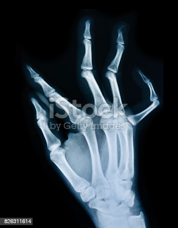 X ray of a human hand.