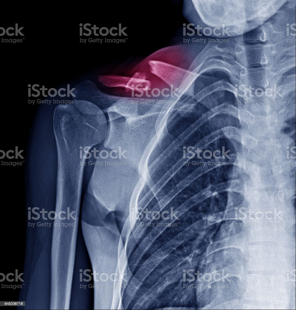 X Ray image of fracture clavicle at red mark area stock photo