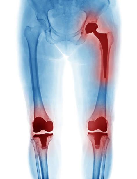 imagen de rayos x de reemplazo de cadera y rodilla reemplazo aislado sobre fondo blanco - gangrena fotografías e imágenes de stock