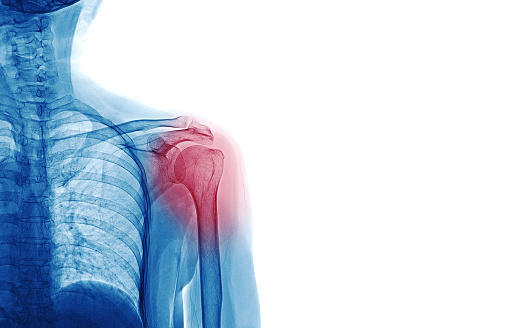 istock X Ray image of patient who have shoulder pain isolated on white background, space for your message and idea medical concept 945204528