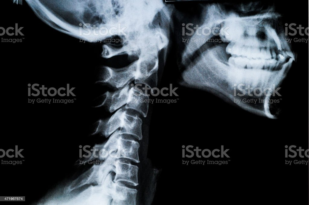 X ray neck and Jaw stock photo