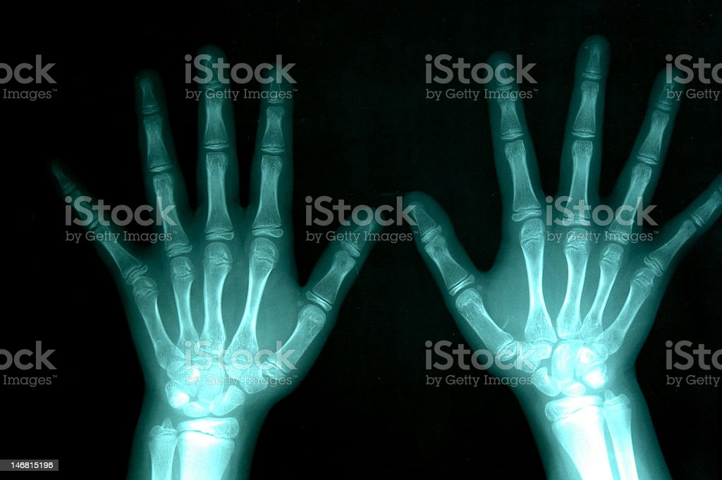 X - ray Of Hands on black stock photo