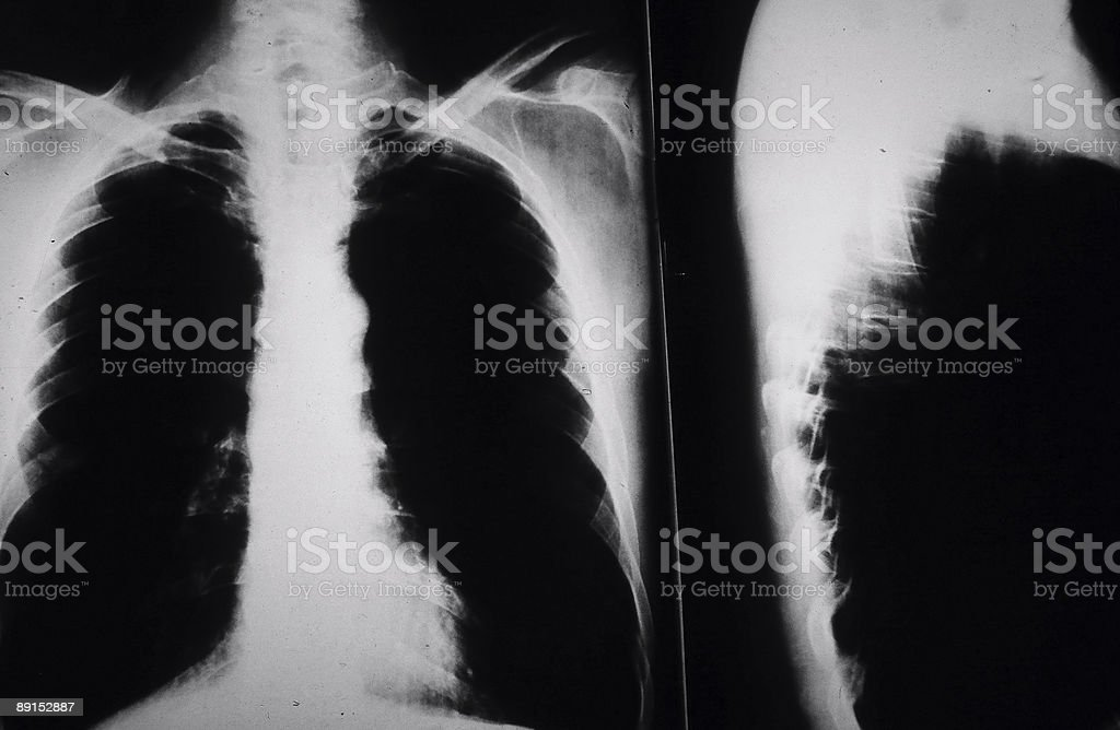 X ray of Smokers Lungs royalty-free stock photo