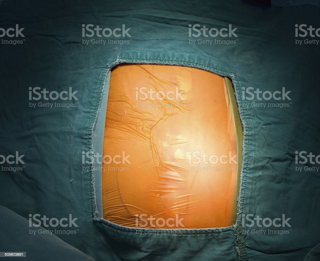 Ready for incision royalty-free stock photo