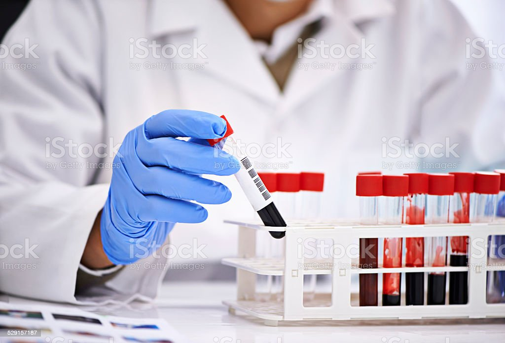 Ready to analyze some blood stock photo