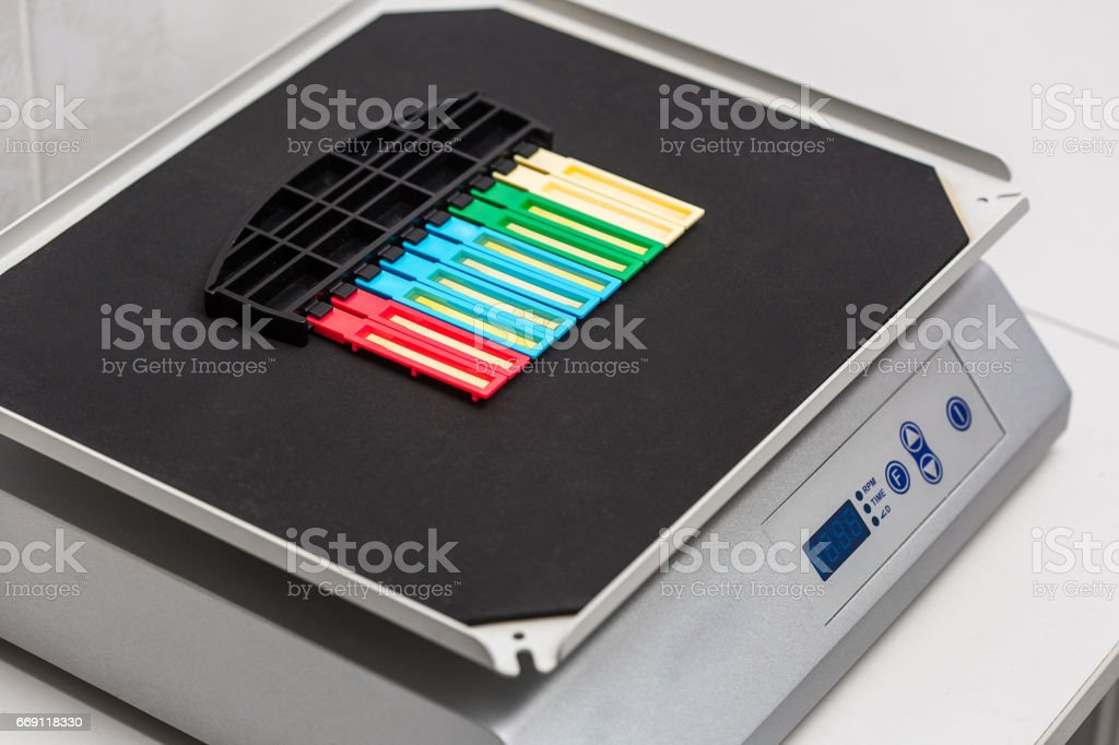 reagent strip test urinalysis in laboratory stock photo