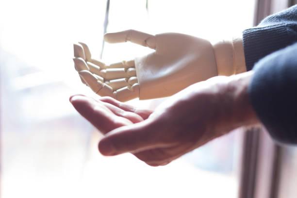 現実と人工アーム - 四肢 ストックフォトと画像