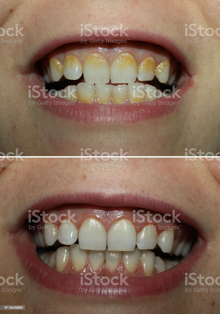 Real before and after tartar plaque removal, yellow tartar dental coating dirty teeth and white clean one true unprofessional photos with no photoshop. stock photo