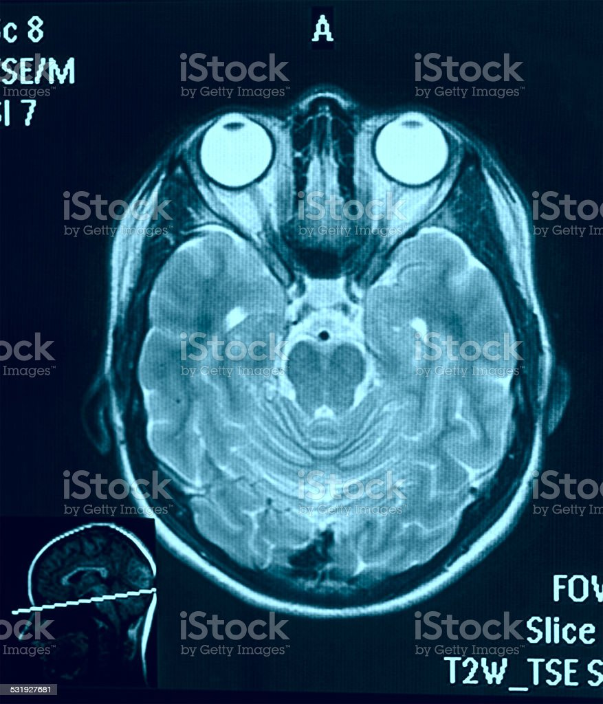 Real brain mri slide of a young woman stock photo more pictures of real brain mri slide of a young woman royalty free stock photo ccuart Choice Image