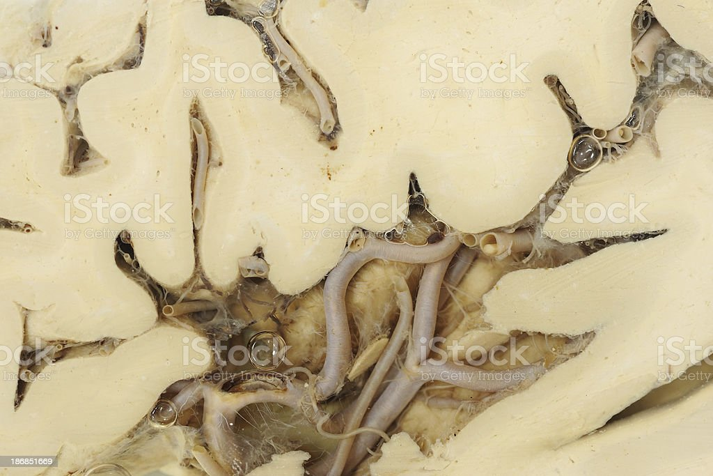 Real human brain royalty-free stock photo