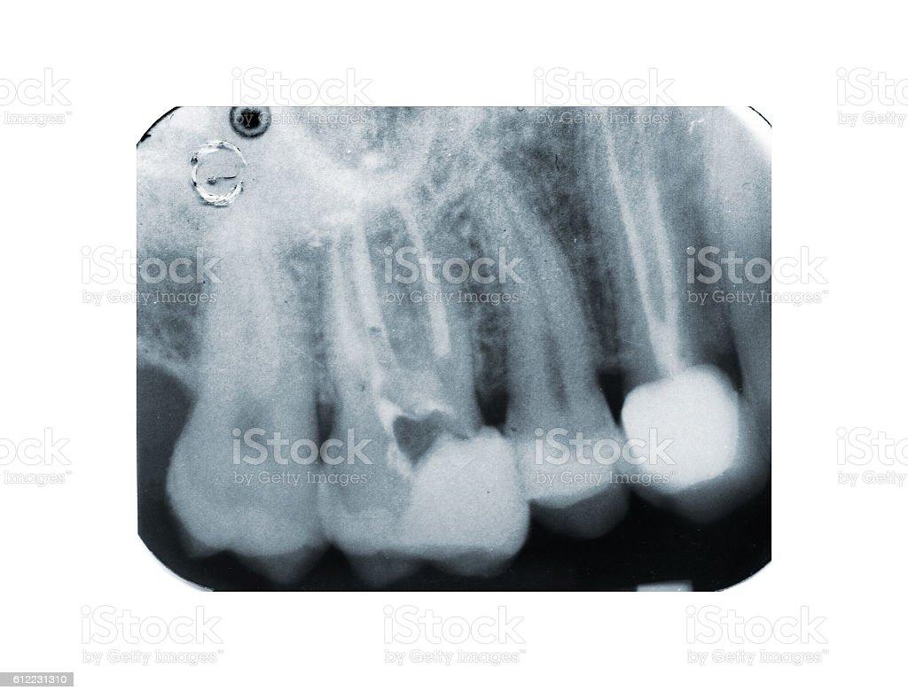 Real x-ray of devitalization tooth - foto de acervo
