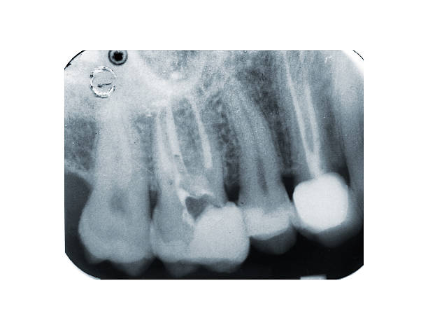 Real x-ray of devitalization tooth stock photo