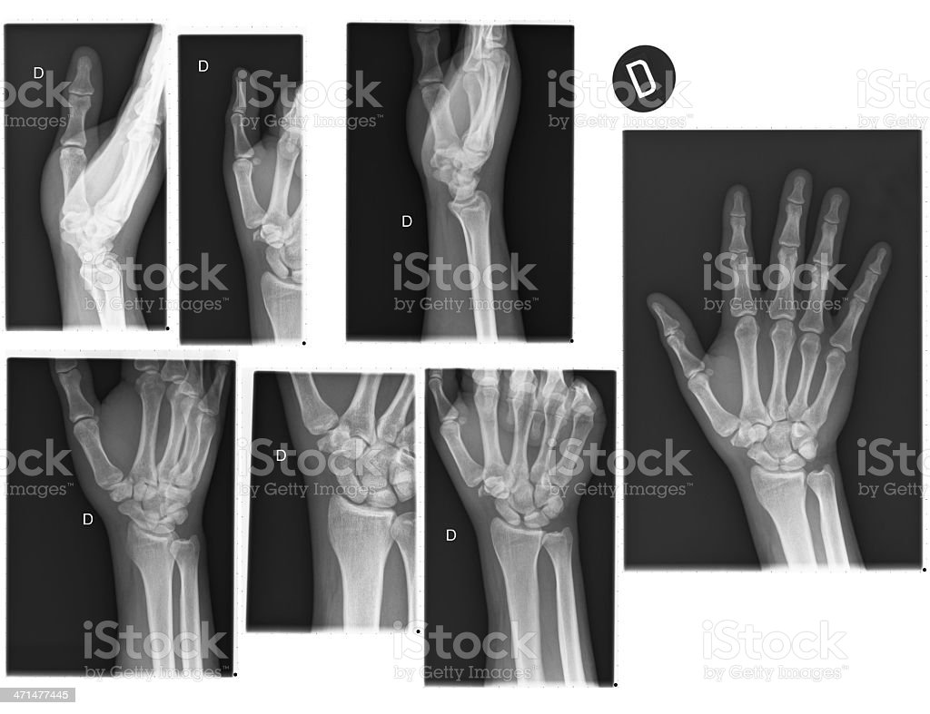 Real X-rays of the Hand and wrist stock photo