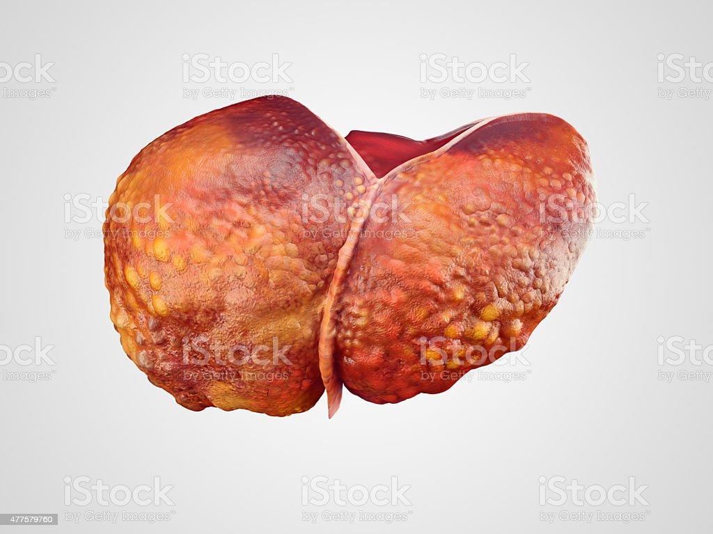 Realistic illustration of cirrhosis of human liver stock photo